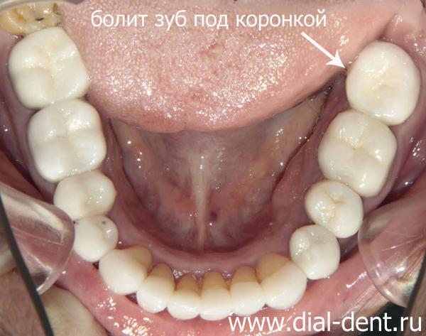 Болит зуб под коронкой – проведено лечение периодонтита