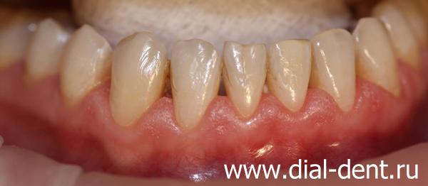 Отбеливание зубов партнерка