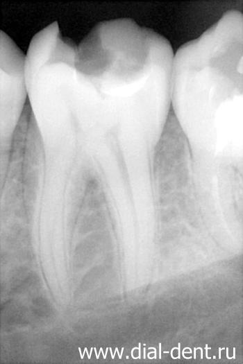 Лечение пульпита и восстановление зуба световой пломбой