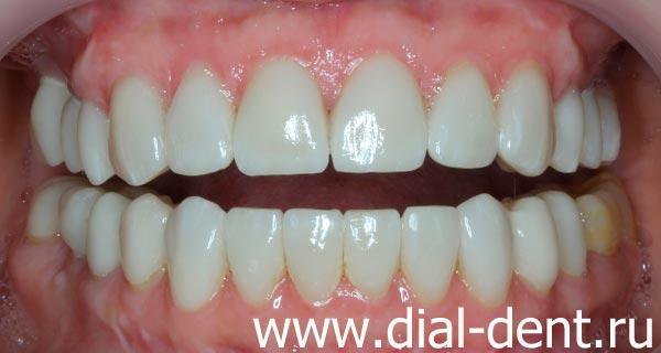результат комплексного стоматологического лечения