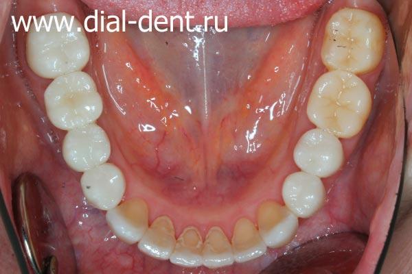 Протезирование зубов закончено! Такой прекрасный результат можно получить только при исправлении прикуса и последующей зубной имплантации и протезировании.