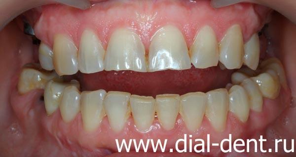 вид зубов при обращении
