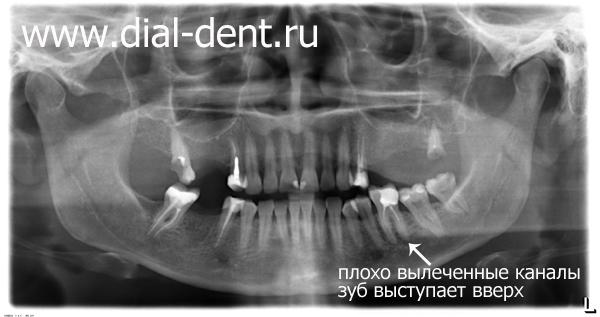 панорамный снимок зубов до лечения
