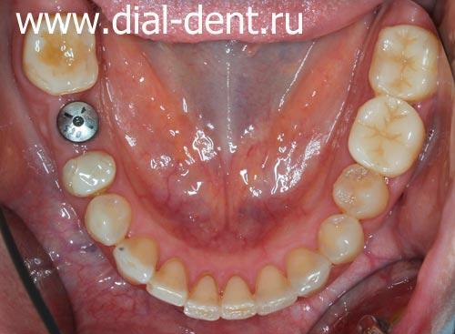 зубной имплант Astra Tech