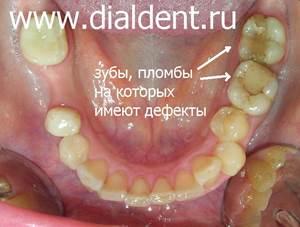 старые пломбы на нижних зубах, в одном из зубов плохо пролеченные каналы