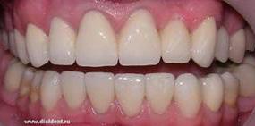 красивые зубы звезд