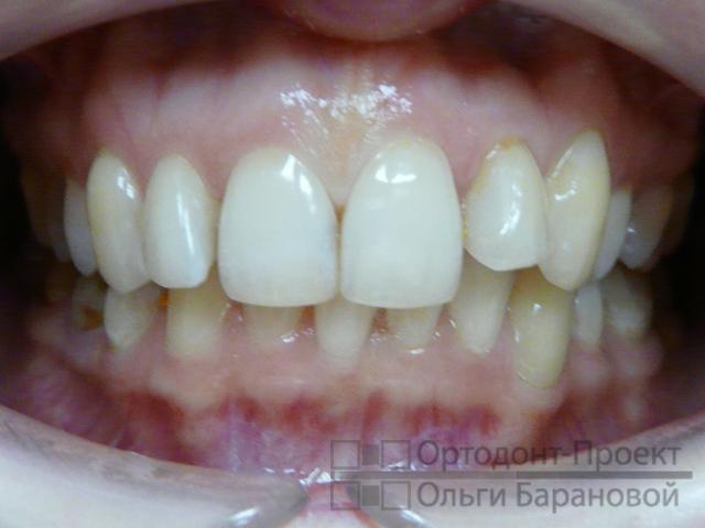 расстояние между зубами для имплантации