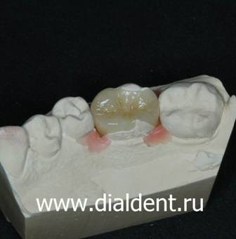 Вкладка в зуб керамическая в депульпированном зубе