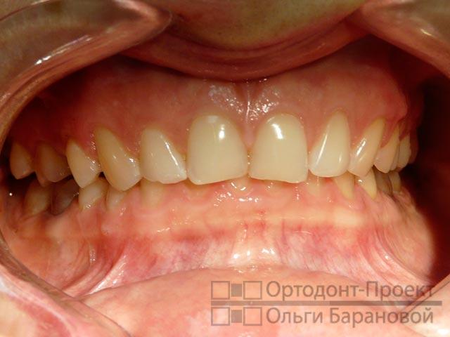 зубы перед установкой виниров