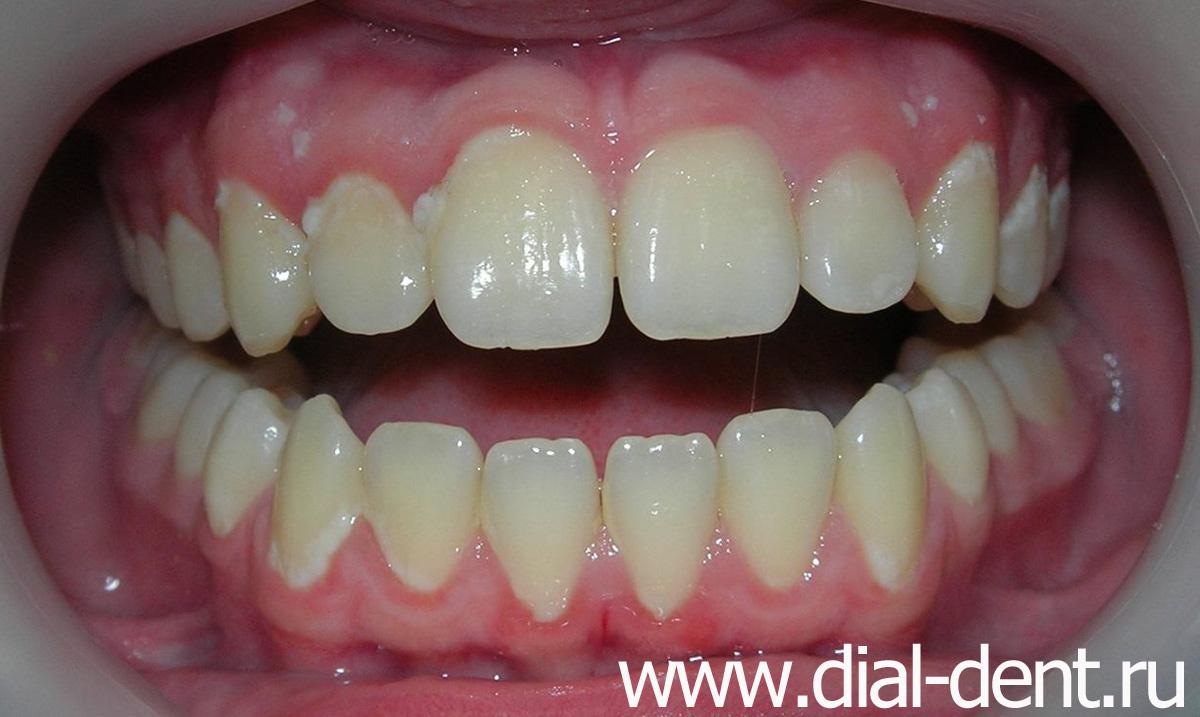 сколько стоит отбеливание зубов в новосибирске