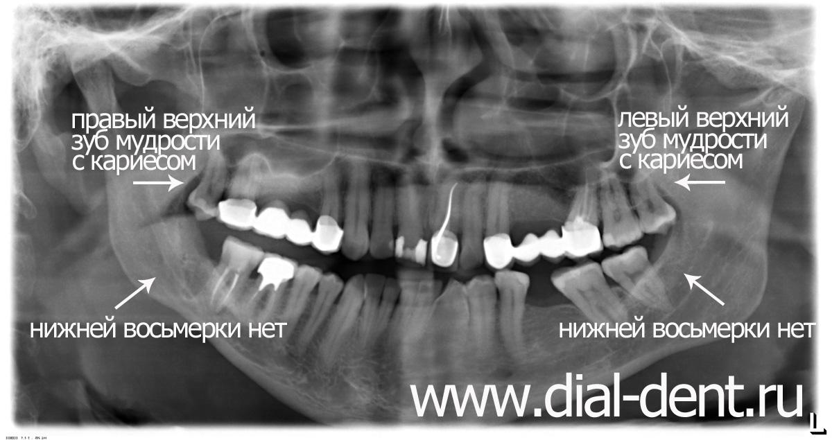 Может ли удаление зуба на месячные