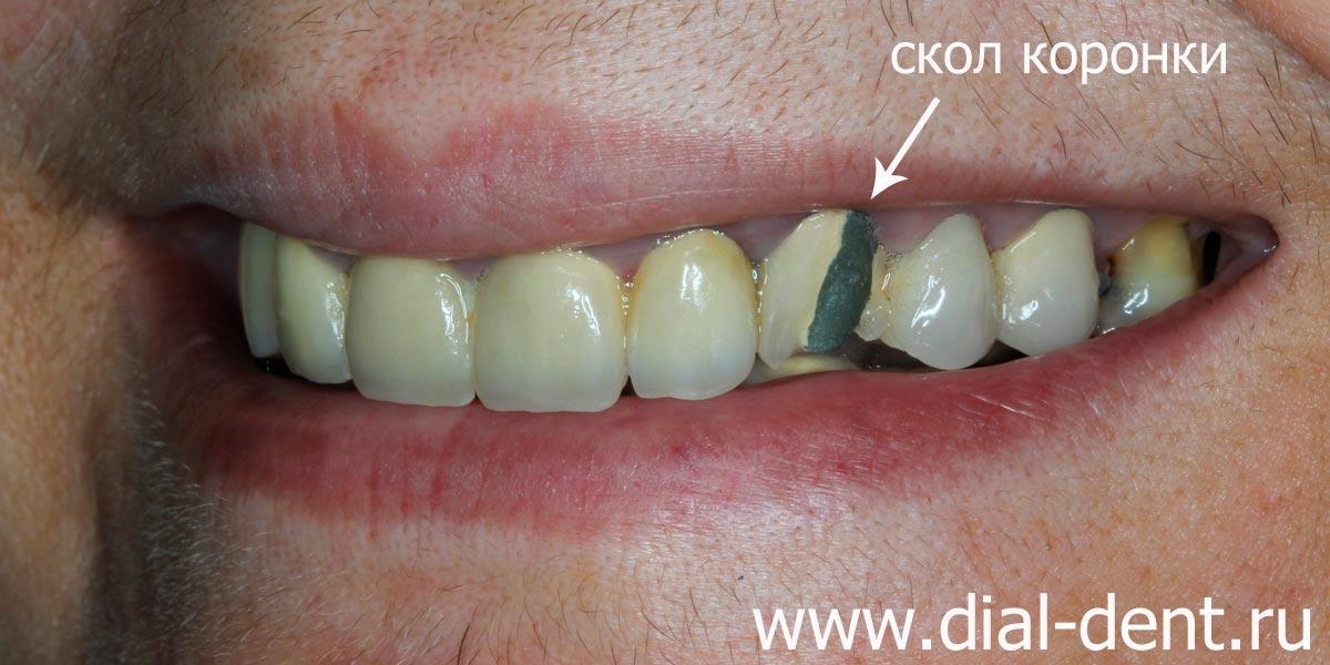 Можно ли отбелить зубы если металлокерамические зубы
