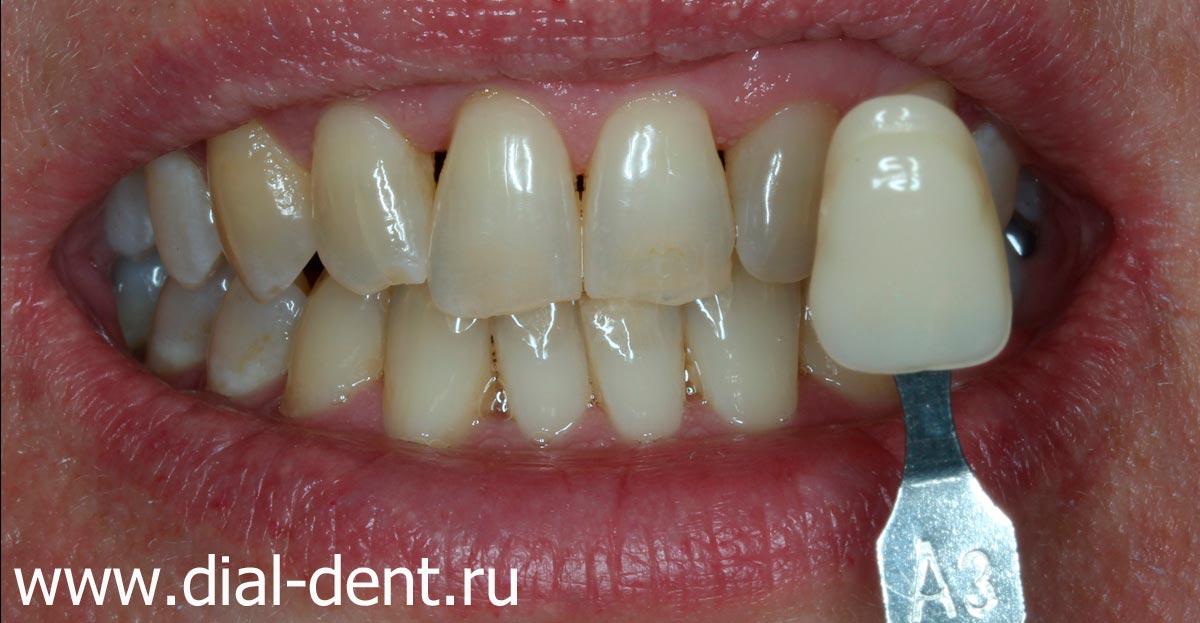 отбеливание зубов zoom 3 акция