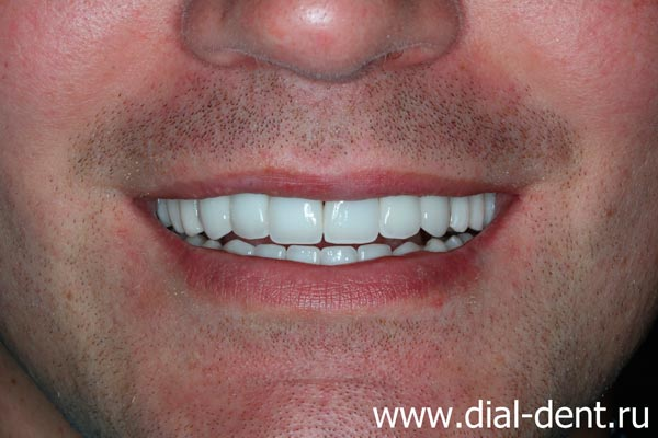улыбка после лечения и протезирования зубов в Диал-Дент