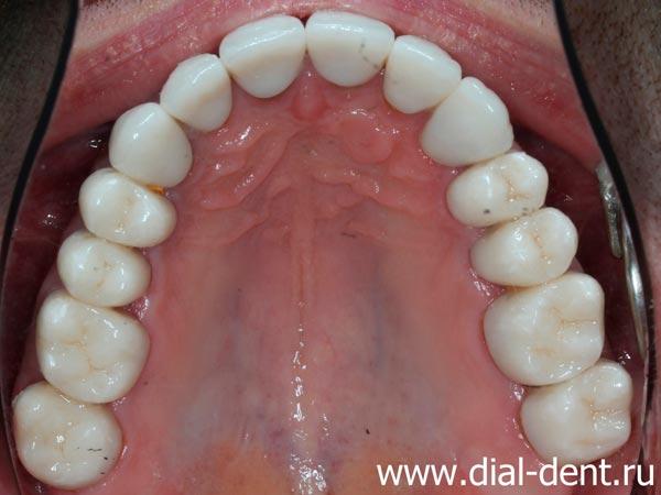 верхние зубы после лечения и протезирования