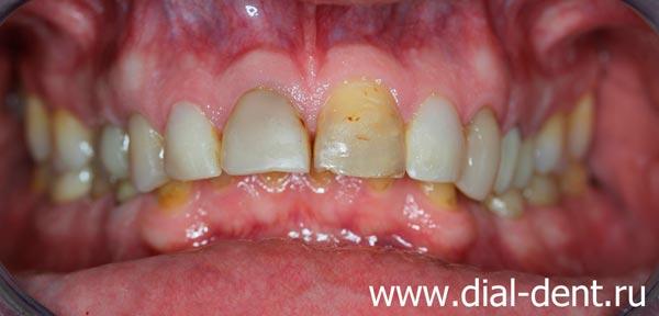 вид зубов до лечения и протезирования