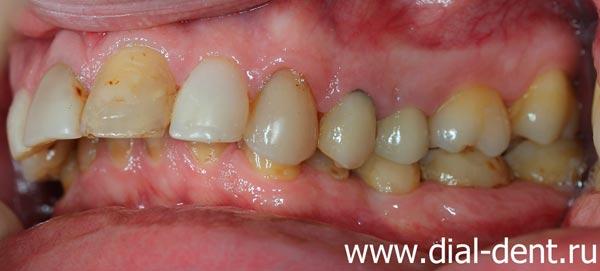 глубокий прикус, стираемость зубов