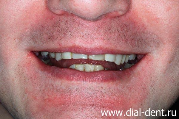 улыбка до лечения