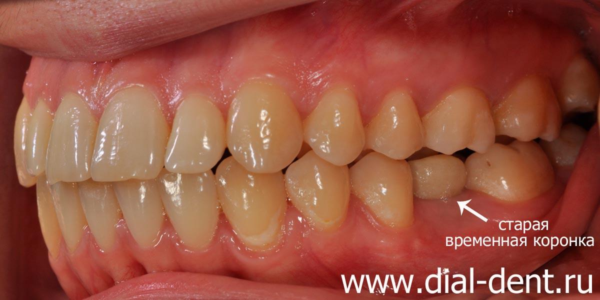 Временные коронки на импланты зубов