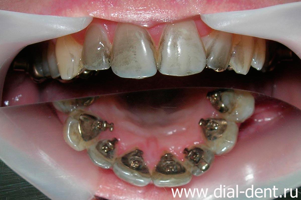 перед отбеливанием зубов необходимо