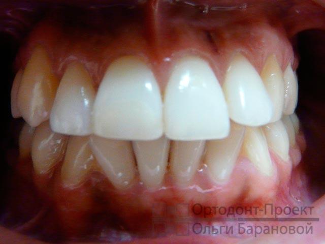 вид зубов при обращении к ортодонту