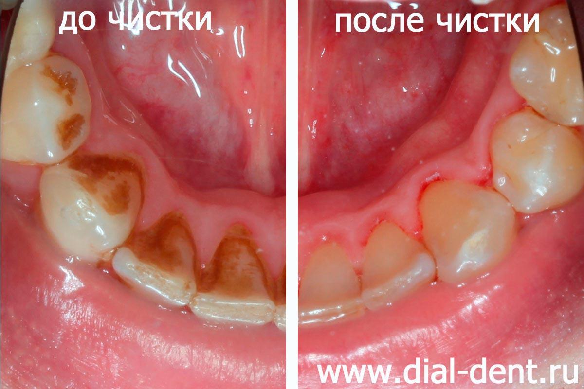 чистка зубов перед отбеливанием