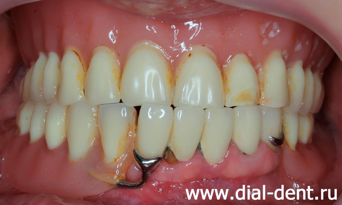 Съёмный зубной протез своими руками фото 514