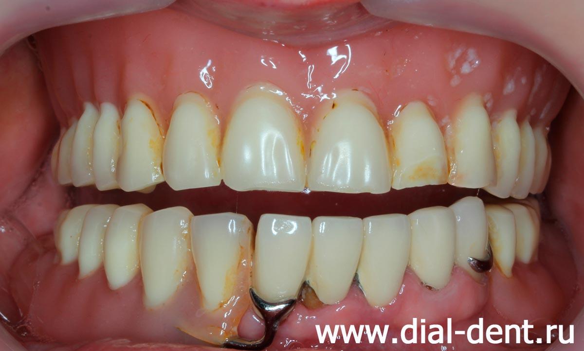 Съёмный зубной протез своими руками фото 870