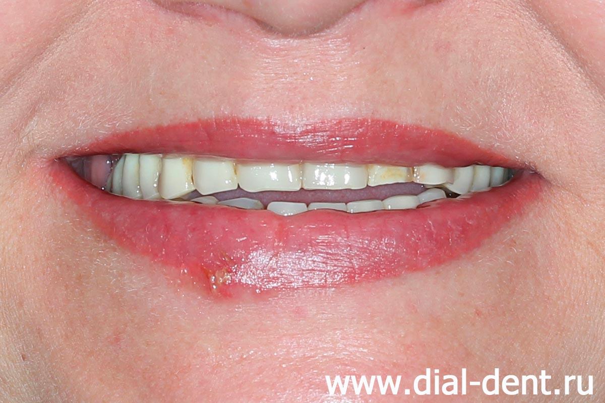 Съёмный зубной протез своими руками фото 582
