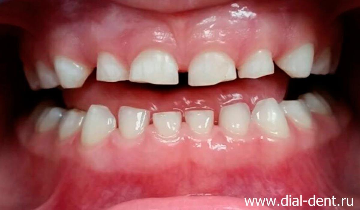 Черные зубы у ребенка: причины и лечение: Болезни