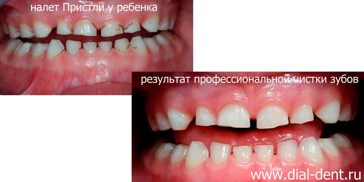 Налет пристли у детей на постоянных зубах