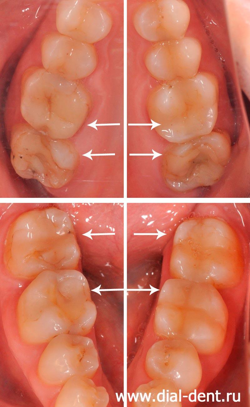 Как в дома содой можно отбелить зубы