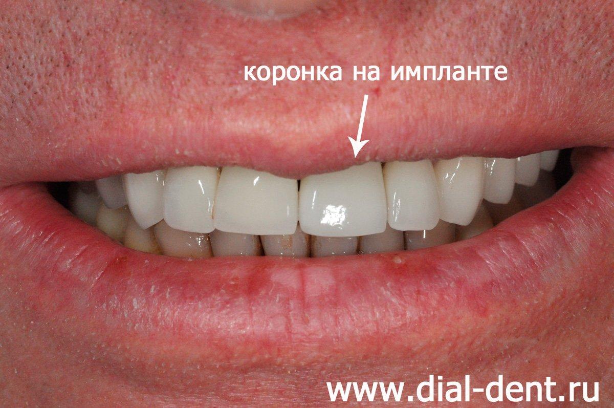 Удаление переднего зуба под имплантацию