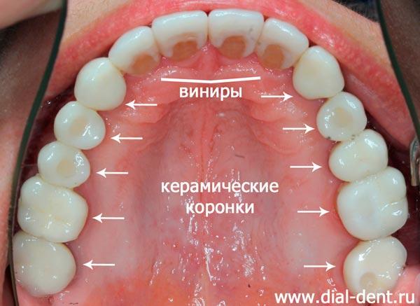 Болит весь нижний ряд зубов