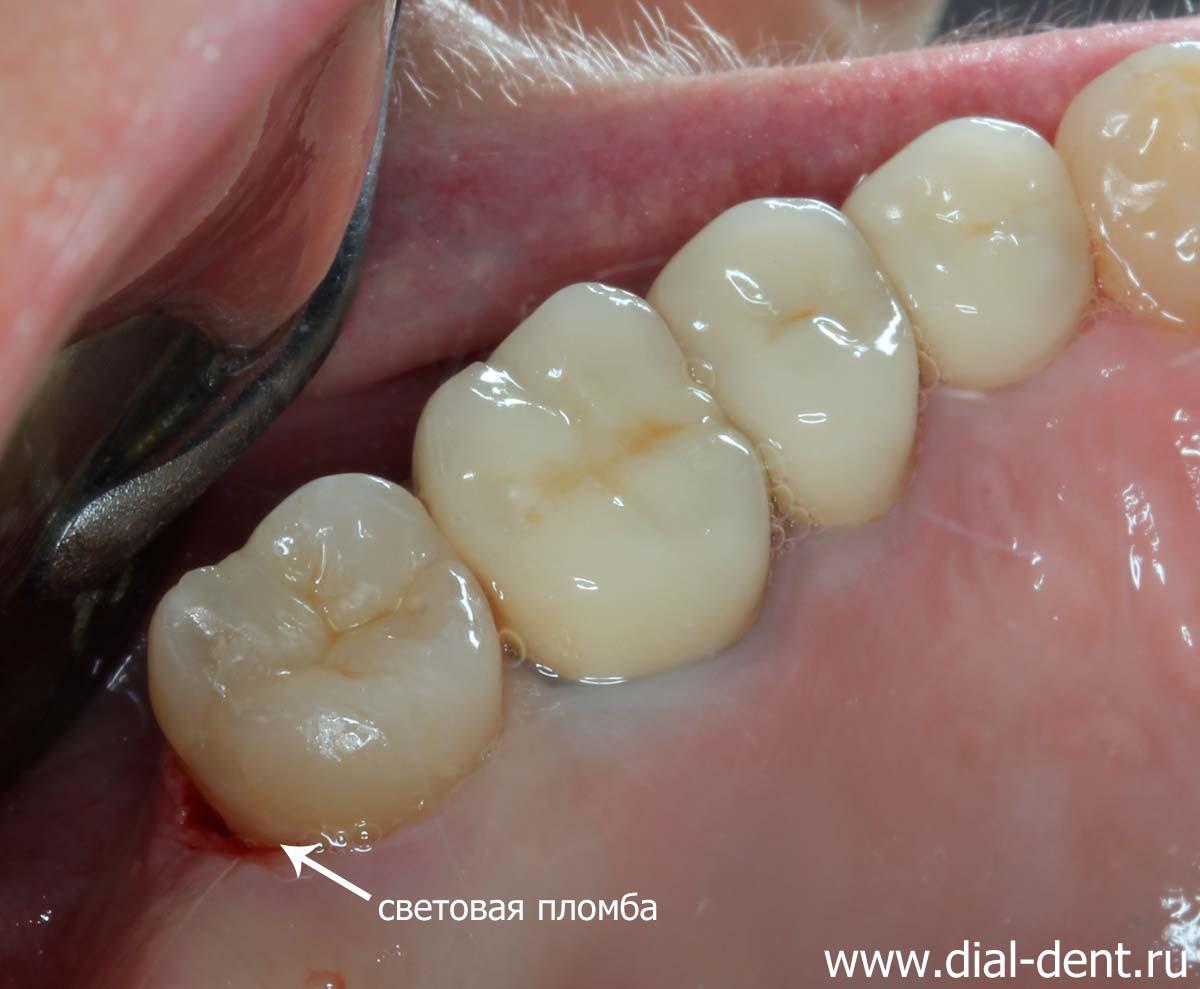 Дырка в зубе снять боль