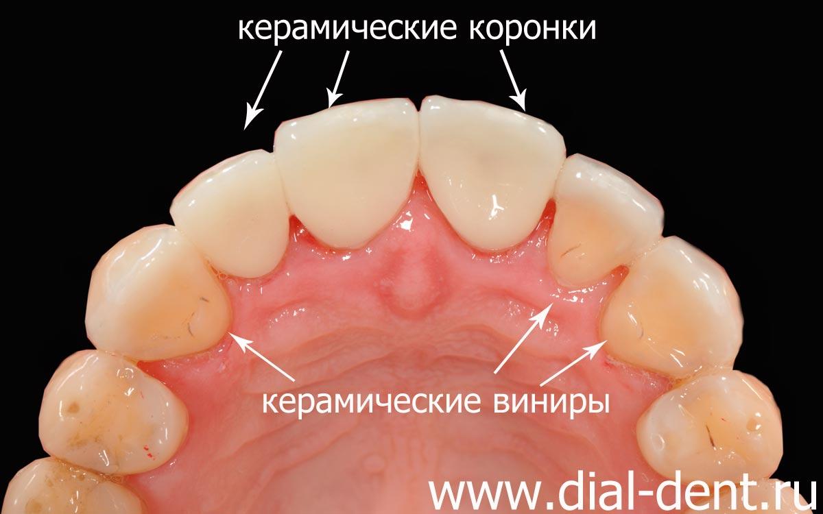 Передний зуб что лучше керамика или