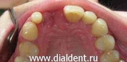 зуб потерян