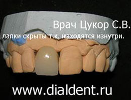 мостовидный протез без обточки