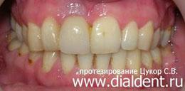 протезирование зубов мостовидным протезом