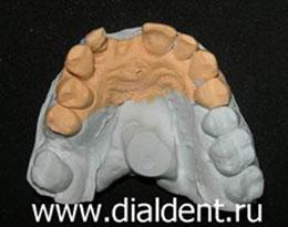 модель верхней челюсти