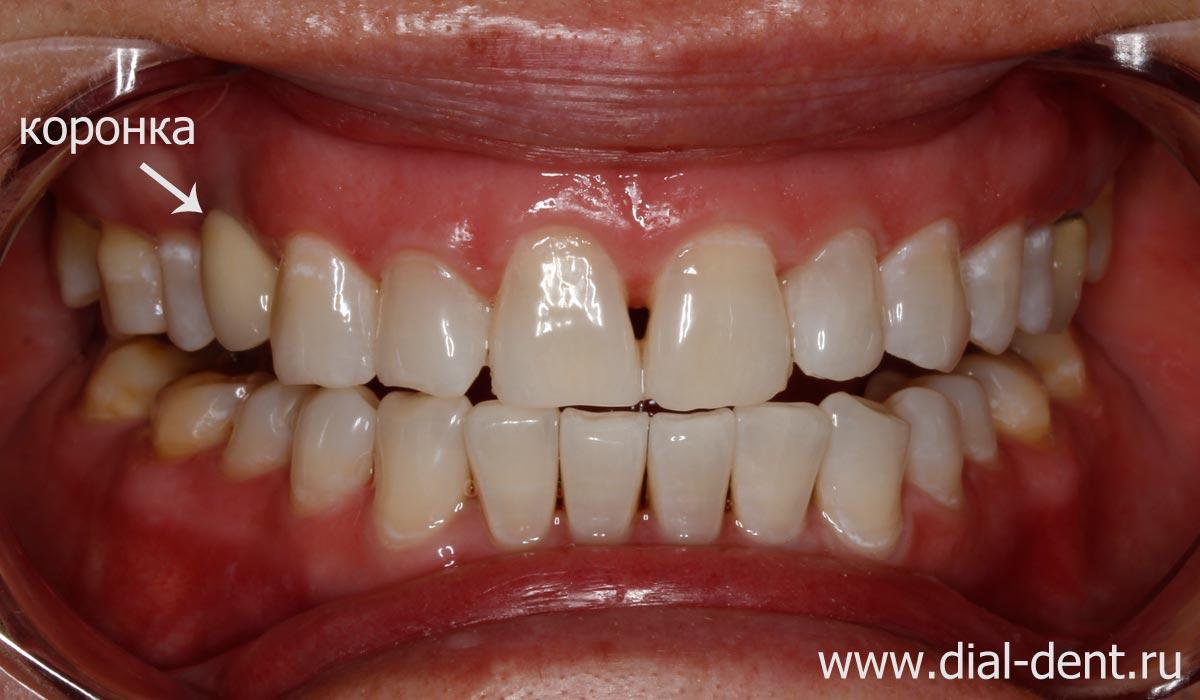 Зубы стали значительно белее