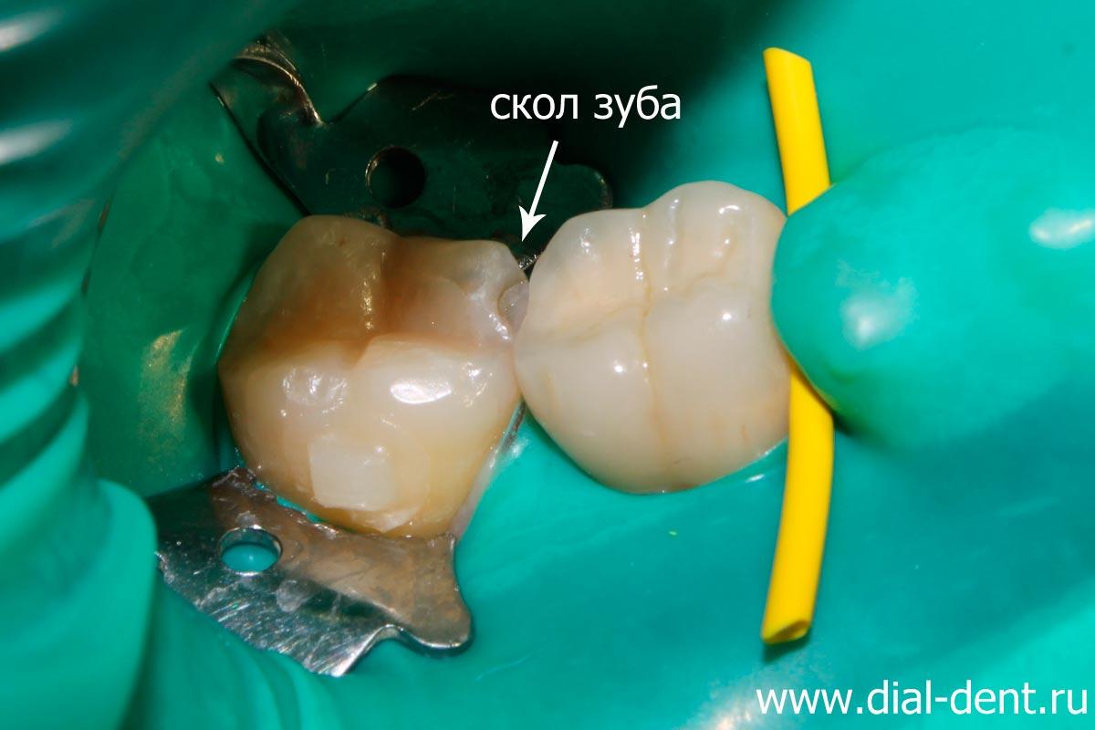 Пломбирование отколовшихся зубов
