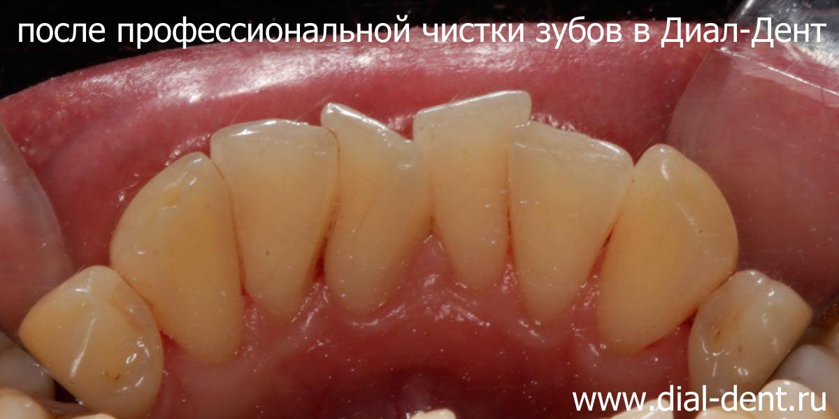 Профессиональное удаление зубного камня