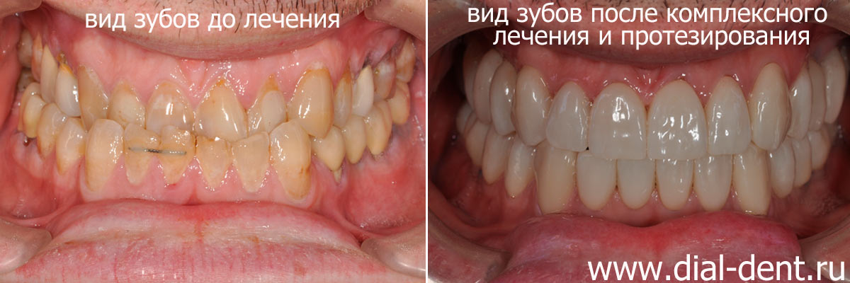 Прикус и имплантация зубов