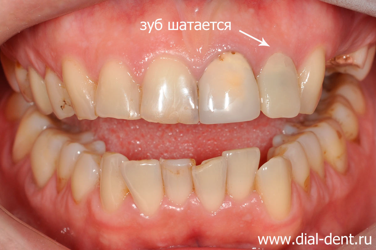 шатается передний зуб, нет зуба на верхней челюсти, кариес, старые пломбы