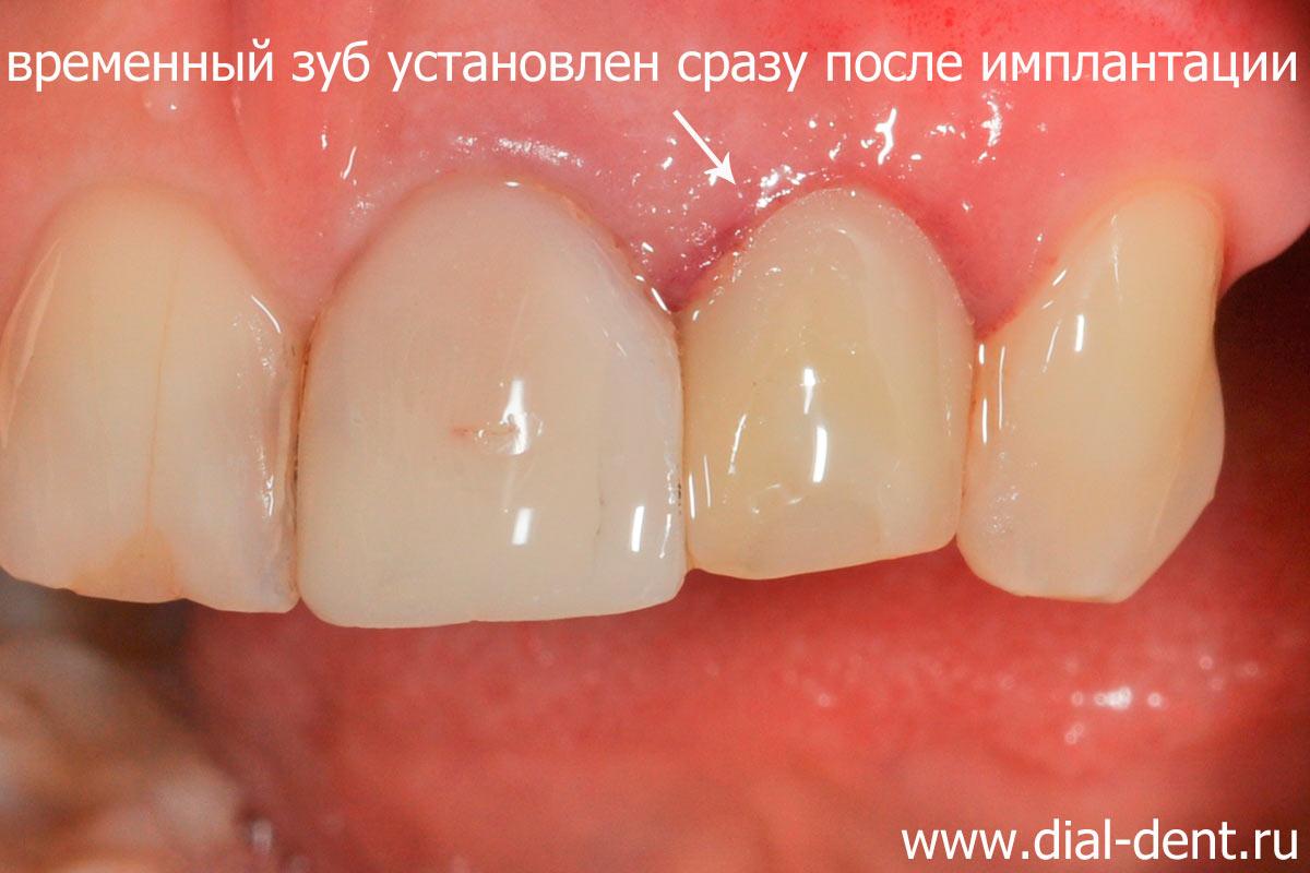 После имплантации зубов временный зуб