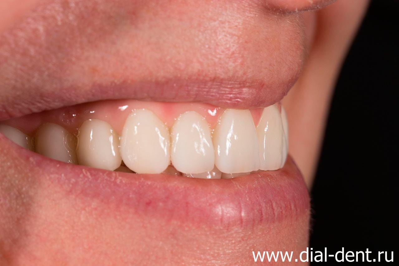 сколько зубов закрывает перфект смайл винир