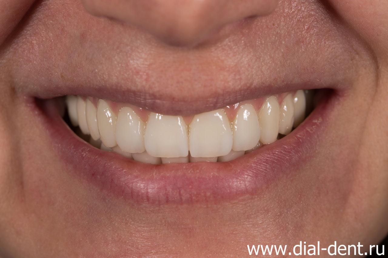 В верхней челюсти нет полностью зубов 62