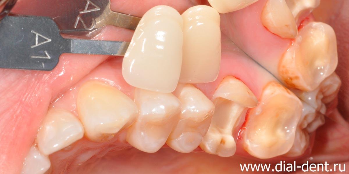 подбор цвета при реставрации зубов