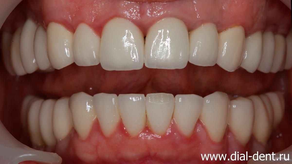 Разъехались зубы после протезирования – решение проблемы